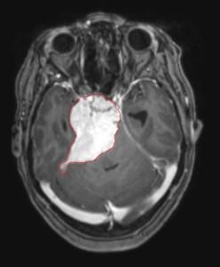 Brain-Scan-Charlotte-Mecklenburg-Injury-Lawyer-North-Carolina-Workplace-Injury-Attorney-248x300