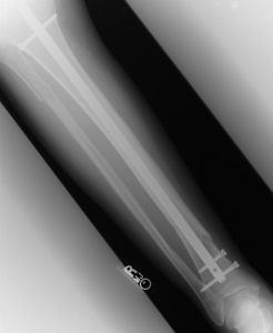 X-ray-Charlotte-Personal-Injury-Lawyer-Union-County-Wrongful-death-Attorneys-246x300